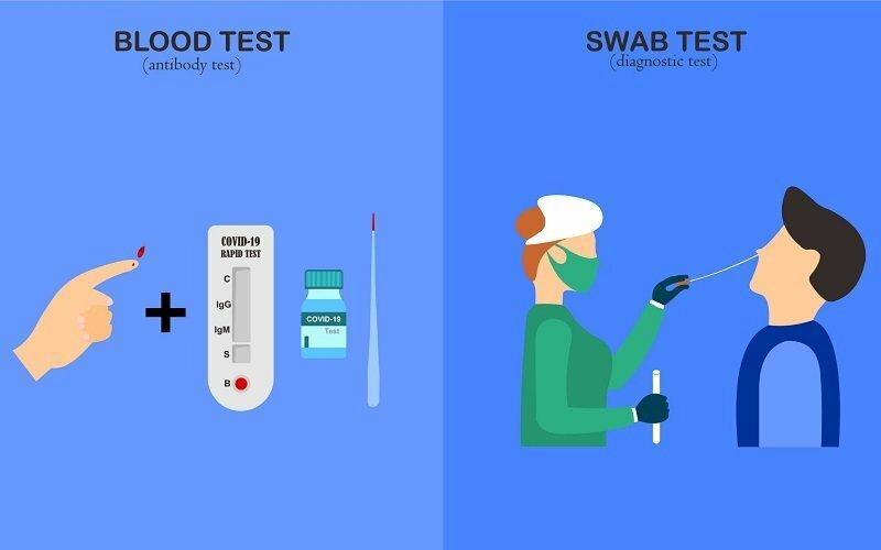 تفاوت تست آنتی بادی کرونا و تست مولکولی