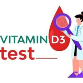 آزمایش ویتامین D چیست؟